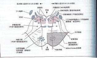 外側 症候群 延髄
